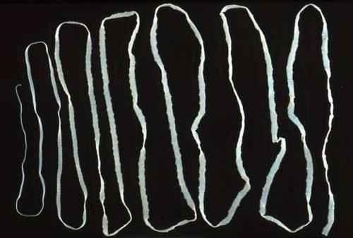 Список самых ужасных для человека паразитов и пути инфицирования 3